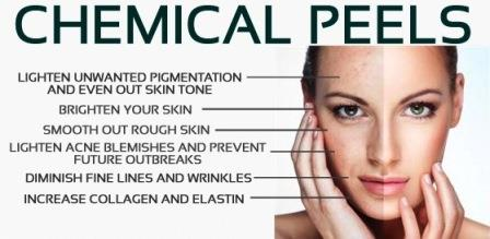 chemical peels